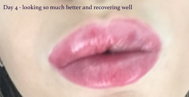 Mercy beauty clinic lips